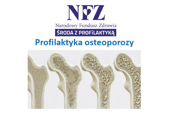 Ilustracja do informacji: Środa z profilaktyką - Profilaktyka osteoporozy