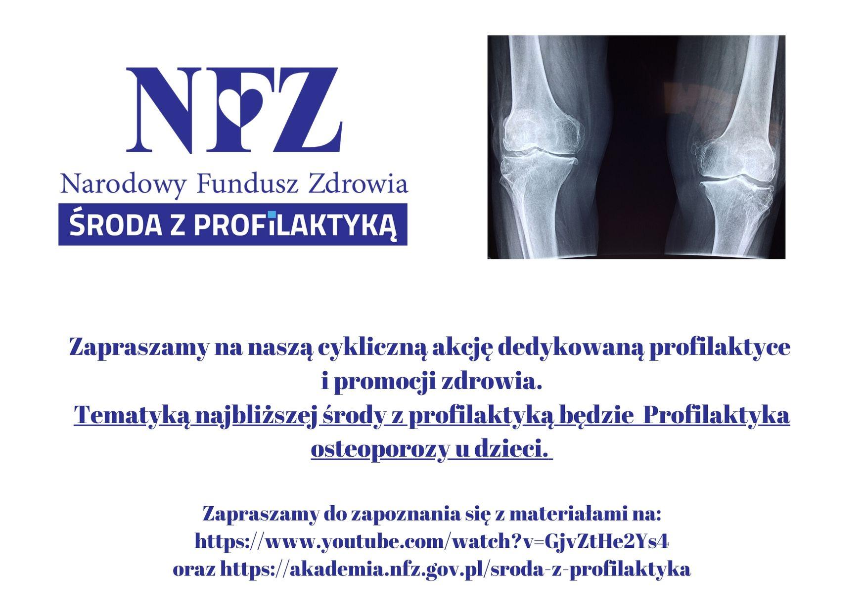 Ilustracja do informacji: Środa z profilaktyką – Profilaktyka osteoporozy dzieci
