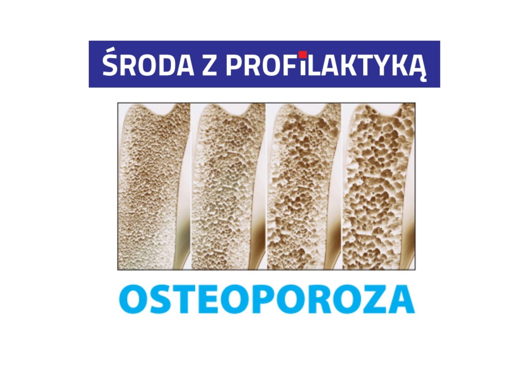 Ilustracja do informacji: Środa z profilaktyką - osteoporoza